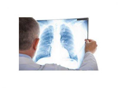 El diagnóstico y el tratamiento correctos garantizan la curación de la tuberculosis