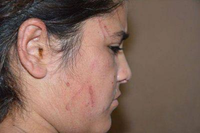 Denuncian a una madre que alentó a sus hijos a que golpeen a una chica a la salida del colegio