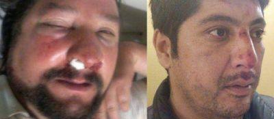 Dos dirigentes de la CTA marplatense fueron brutalmente agredidos