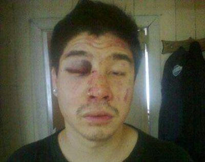 Joven fue brutalmente golpeado en un boliche