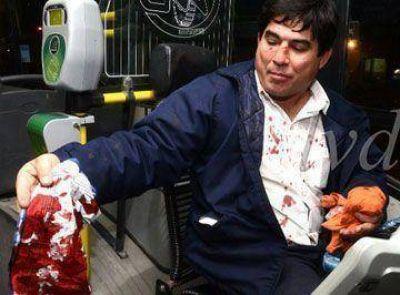 Violenta agresi�n a chofer de colectivo provoca indignaci�n