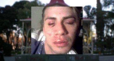 Lo golpearon por ser gay a la salida de un boliche en Trelew