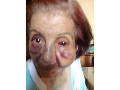 El geriátrico denunciado por maltrato a una anciana no contaba con los requisitos para su habilitación