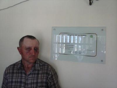 Un hombre denunció que le dieron una feroz paliza en la comisaría de Puelches