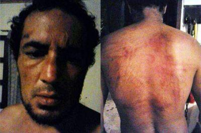 Denuncian brutal golpiza policial y persecusión contra un joven