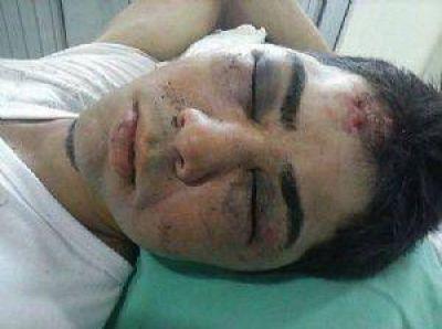 Brutal ataque de una patota a un joven a la salida de un boliche en Charata