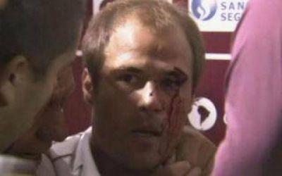 Violencia en el fútbol: Jugador de Lanús fue agredido por un hincha