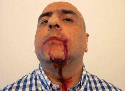 El Sindicato de Prensa Bonaerense pide el procesamiento de Francisco de Narváez