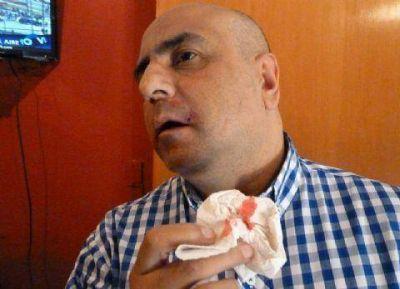 Salvaje agresi�n de Francisco de Narv�ez al director de Agencia NOVA