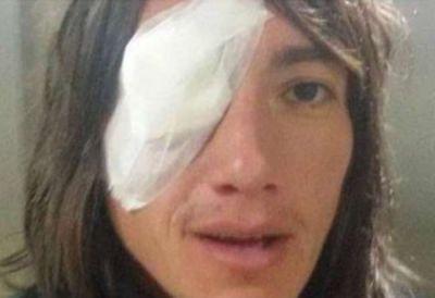 Un paso atr�s: agredieron a Pablo Lug�ercio