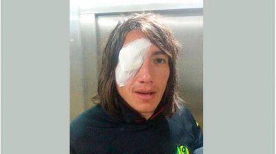 """Lugüercio recibió un piedrazo y sufrió una """"úlcera de córnea"""""""