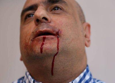 De Narváez, complicado: Piden su procesamiento por la golpiza al periodista Mario Casalongue