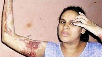 Un ex director del INADI acusado por prender fuego a su pareja quedó libre y le volvió a pegar