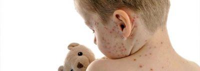 Preocupación por casos de varicela: Hay 20 casos en Chilecito