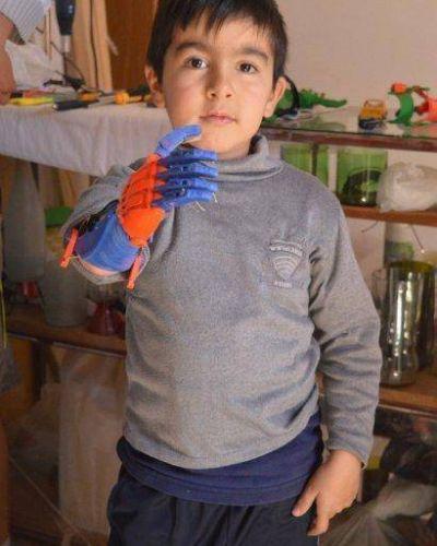 Un papá construyó la prótesis para su hijo sin saber de ortopedia ni de medicina