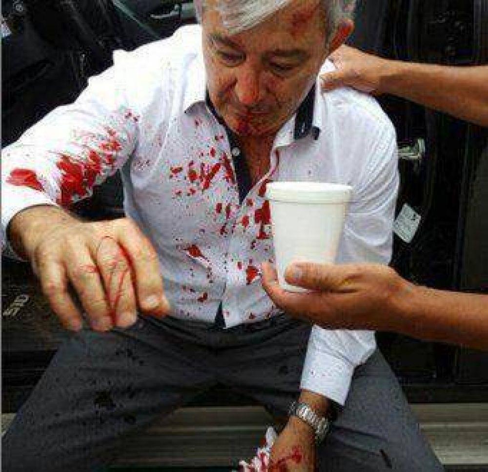 Agresión a Martín Grande: La jueza dio lugar al pedido del fiscal y Sebastián Ramos continuará detenido