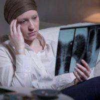 El 30% de los pacientes de cáncer de pulmón podrá tratarse sin quimioterapia