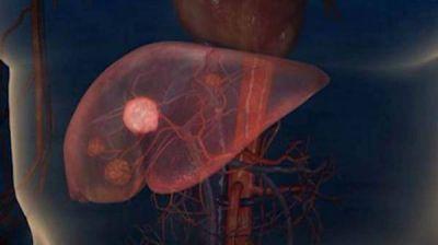 Hepatitis: los últimos avances de esta enfermedad silenciosa y curable
