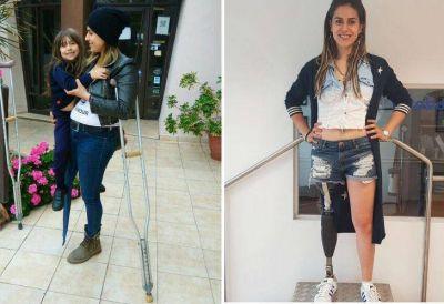 La joven madre soltera que conmovió al país consiguió su pierna ortopédica