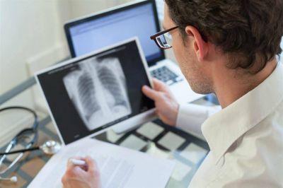 Los casos de tuberculosis en la Argentina aumentaron un 6% entre 2015 y 2017
