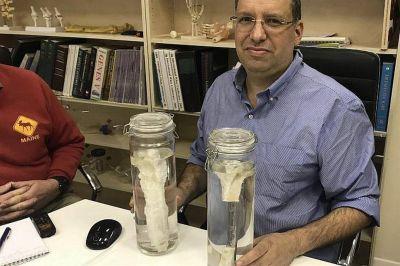 Un avance biotecnológico logra crear un sustituto óseo para regenerar huesos