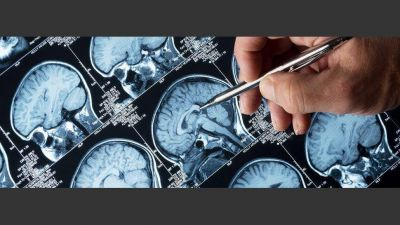 Epilepsia: con la medicación adecuada, el 70% de los pacientes deja de tener crisis