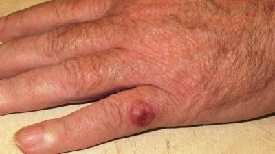 Advierten por un cáncer de piel poco frecuente pero muy agresivo