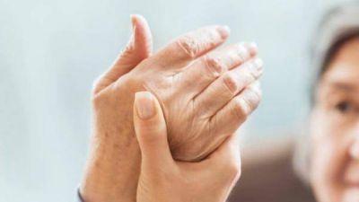 Artritis reumatoidea: la enfermedad discapacitante que padecen 400.000 argentinos
