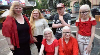 Albinos piden ser incluidos en el Programa Médico Obligatorio