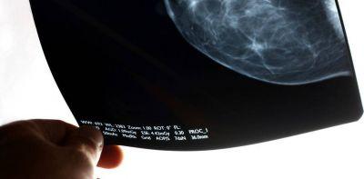 Cuáles son los tres tipos de cáncer más letales en la Argentina