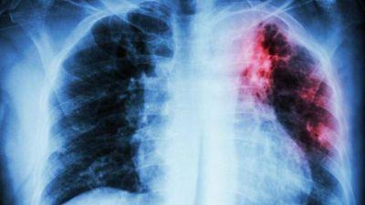 Tuberculosis: una enfermedad cada vez más mortal en Argentina