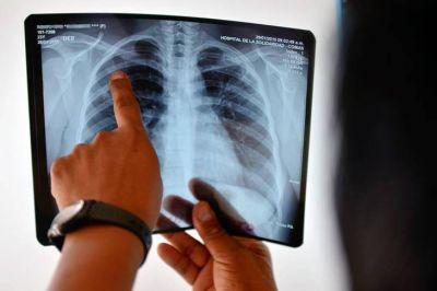 Con el aumento de la pobreza, también crecen los casos de tuberculosis