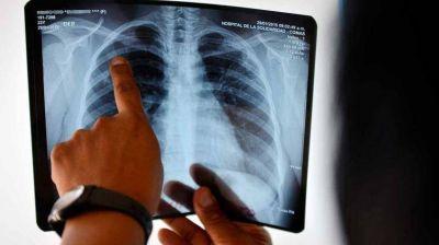 Nuevo caso de tuberculosis en Provincia: cómo se previene y cuáles son los riesgos