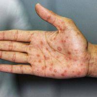 Sífilis, la vieja enfermedad de transmisión sexual que volvió con todo