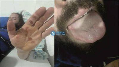 Merlo: Un músico recibió una descarga eléctrica en un festival organizado por el Municipio