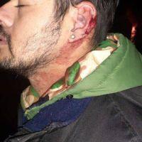 Graves incidentes por el paro de choferes: hubo tiros y heridos