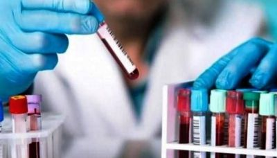 Santa Cruz registró 96 casos positivos de Coronavirus en seis localidades