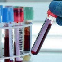 Coronavirus en el Chaco: 5 muertos y 192 nuevos contagios en las últimas 24 horas
