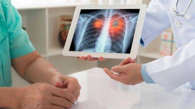 Avances de la biología molecular para pacientes con cáncer de pulmón
