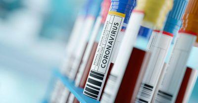 """Coronavirus: el """"boom"""" de los análisis de anticuerpos en Comodoro"""