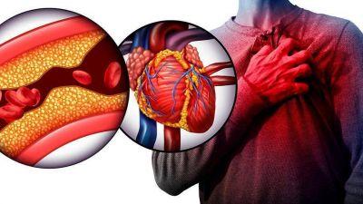 ¿Sabés todo lo necesario sobre el colesterol en los alimentos?: este es el error que muchos cometen