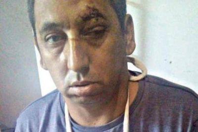 Bombas y golpes: los casos de violencia política se multiplican en territorio bonaerense