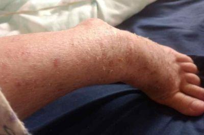 La pandemia agravó la situación de las personas con dermatitis atópica