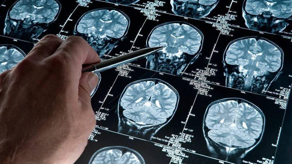 PAMI presentó una guía para el abordaje de personas con Alzheimer