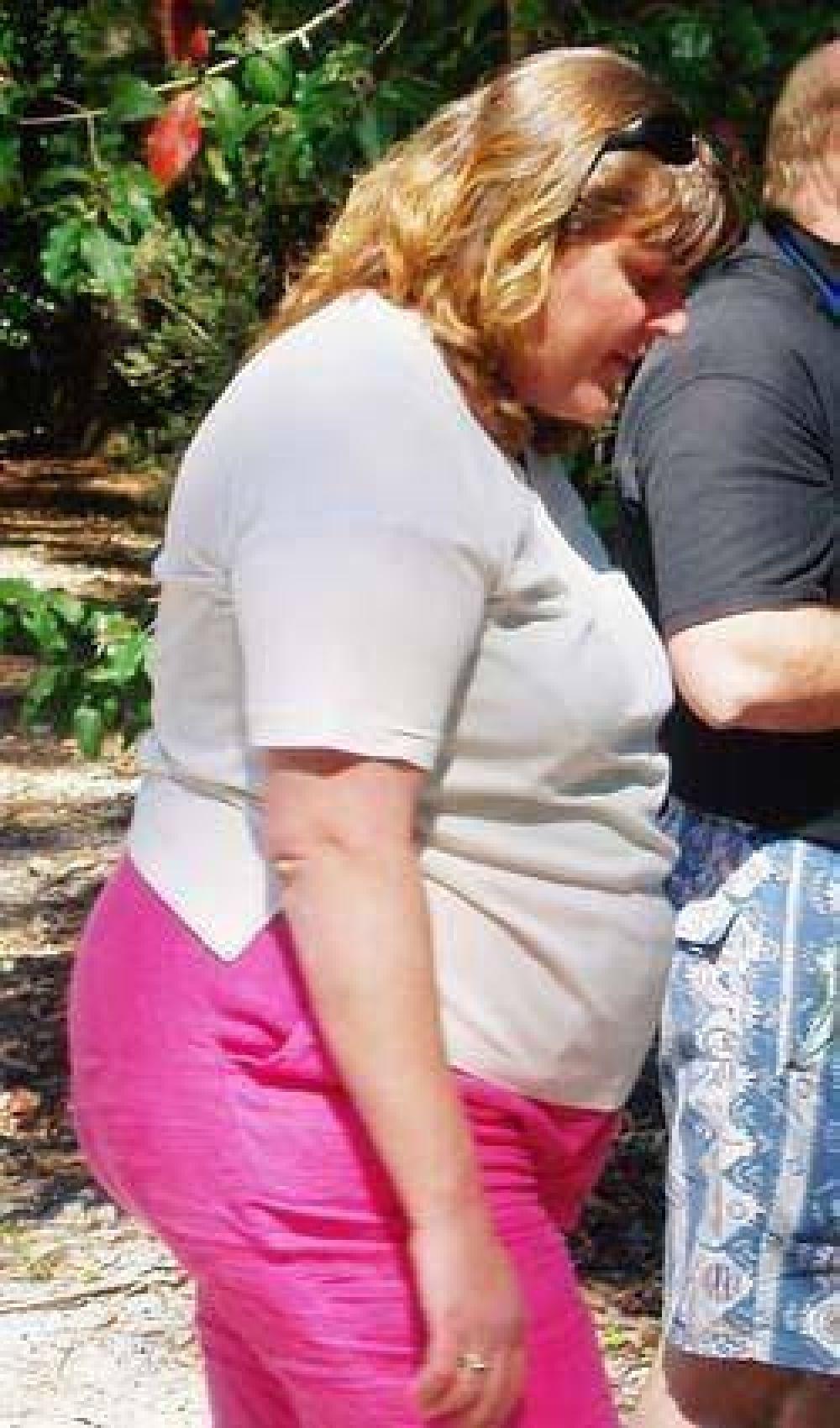 Plan para la atención de personas obesas se brinda por la web