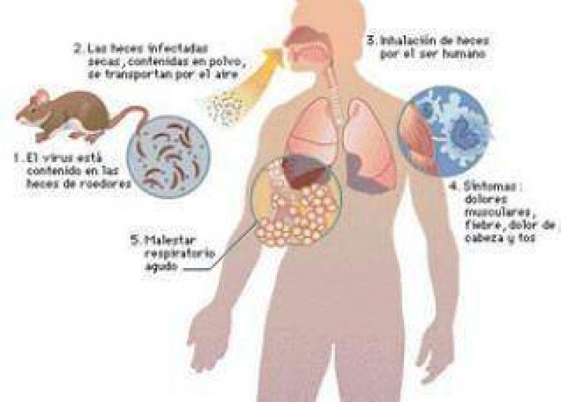 Hantavirus en Jujuy: Hubo nueve casos de hantavirus pero se detectaron a tiempo.